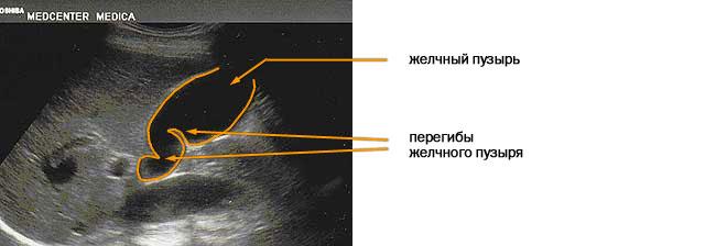 УЗИ печени и желчного пузыря с функциональной пробой