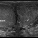 УЗИ органов мошонки — особенности исследования